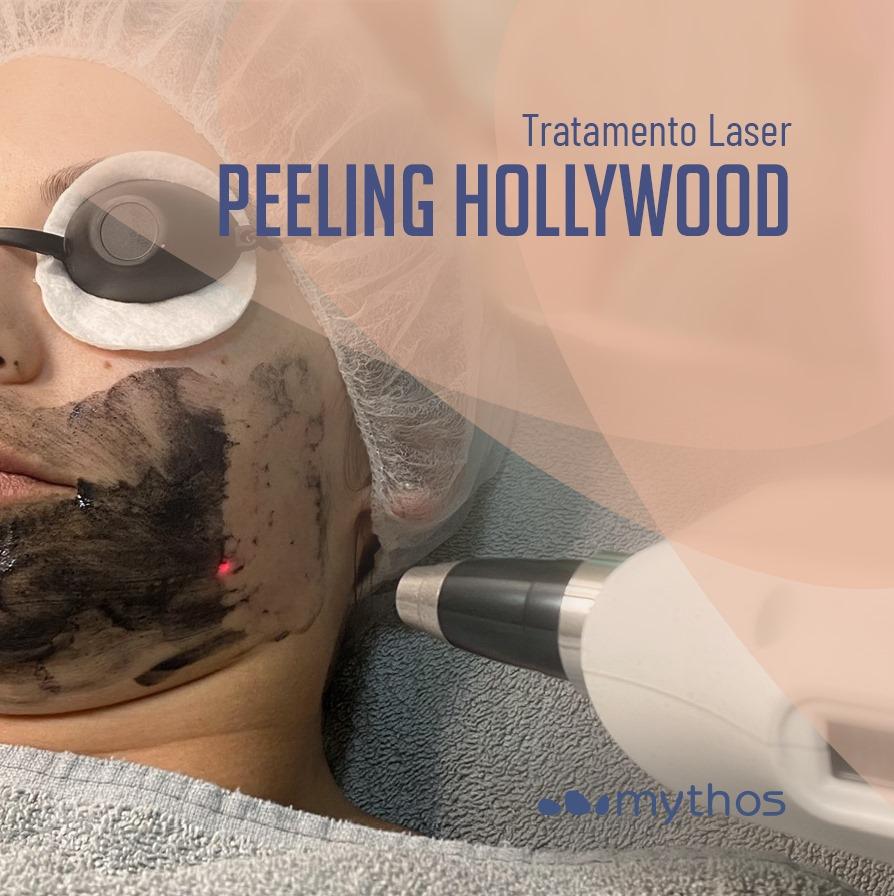 Peeling de Hollywood