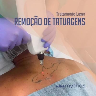 Remoção Tatuagens e Micropigmentação