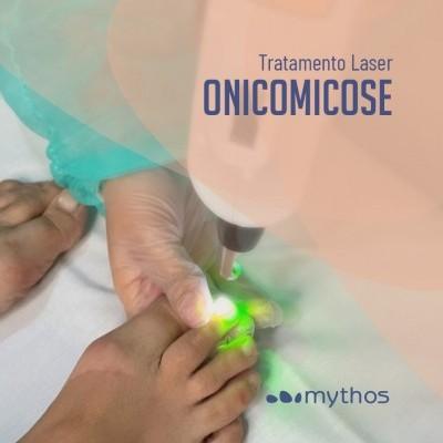 Tratamento Onicomicose - Fungos na Unhas