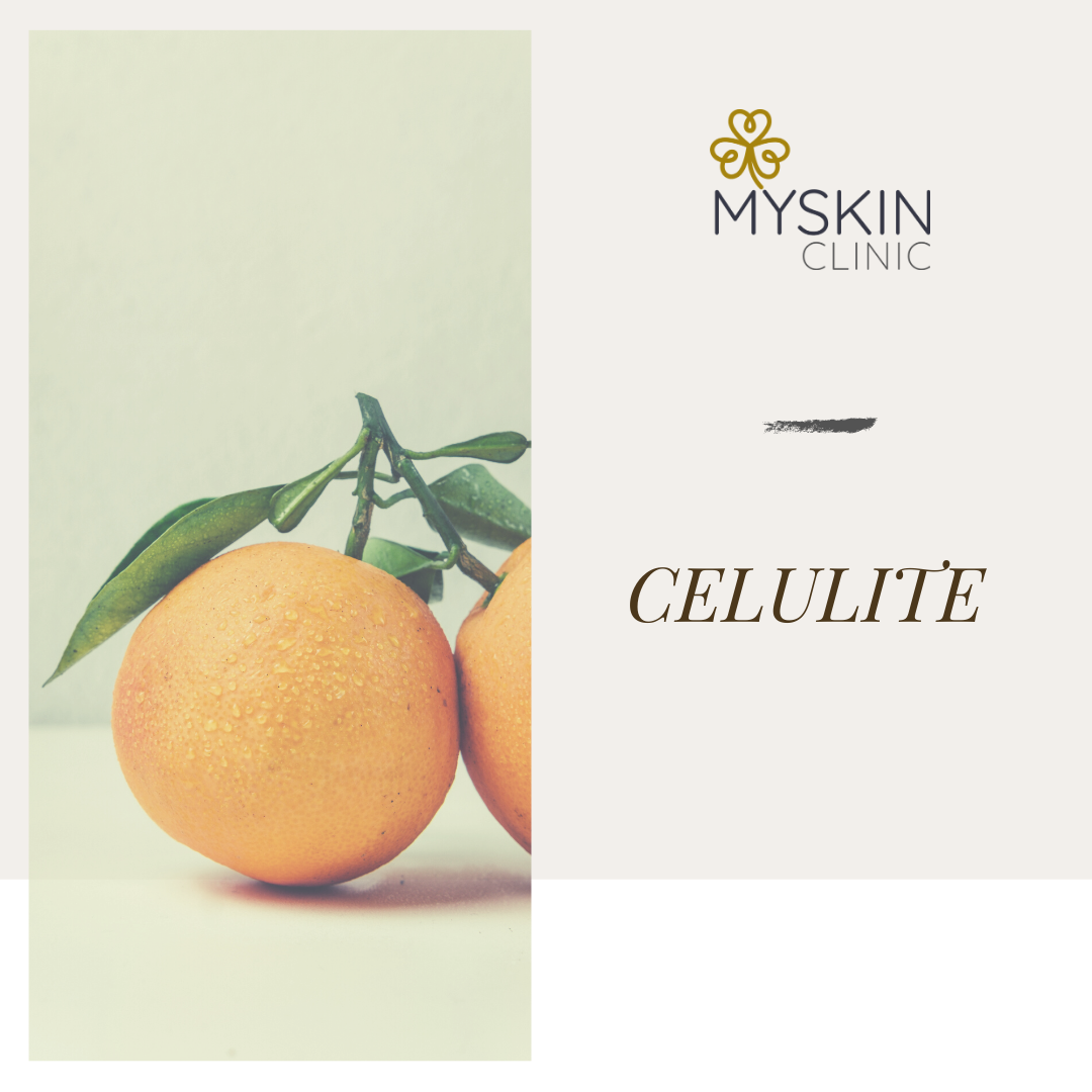 Celulite: principais causas e tipos