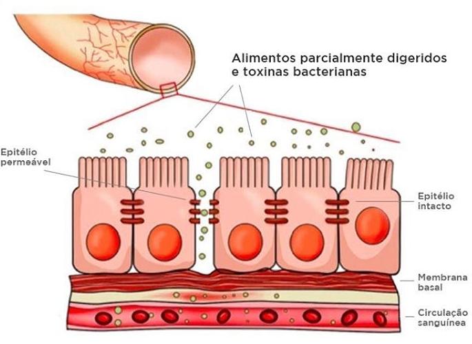 Alergias Vs Intolerância alimentar
