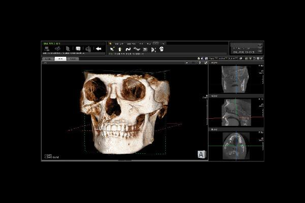 Ortopantomografo Papaya Plus Ceph 3D com Telerradiografia
