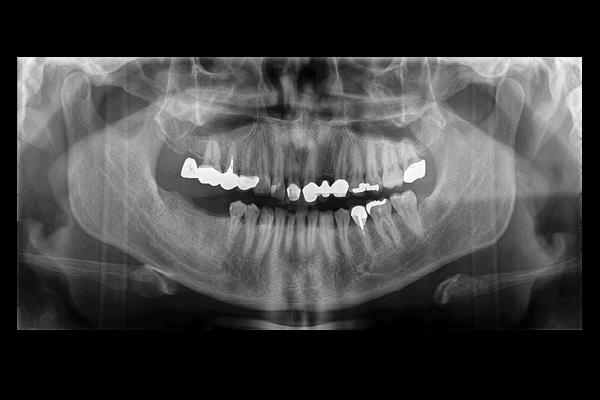 Ortopantomografo Papaya Plus Ceph com Telerradiografia